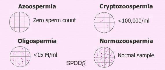 ازواسپرمی یعنی در مایع منی اسپرم وجود ندارد